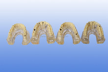Maxillary implant and caries dental model