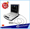 laptop ultrasound machine&doppler ultrasound price DW-C60