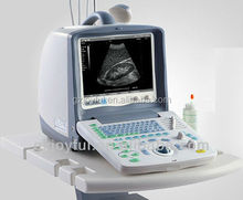medical equipment CE certified New portable 10 inch B-Ultrasound Scanner