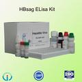 prueba de diagnóstico Kit de prueba de HBsAg elisa