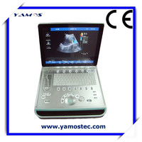Best Price Color Doppler Ultrasound Equipments with electronic linear,electronic convex,electronic micro convex Scanning Models