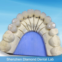 Dental Porcelain Bonded to metal crown and bridge supply