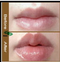 HA Filler derm-filler mouth, sexy and beautiful lips/Full Hydra