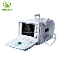 MY-A001 Medical Portable USB Aloka Ultrasound Machine