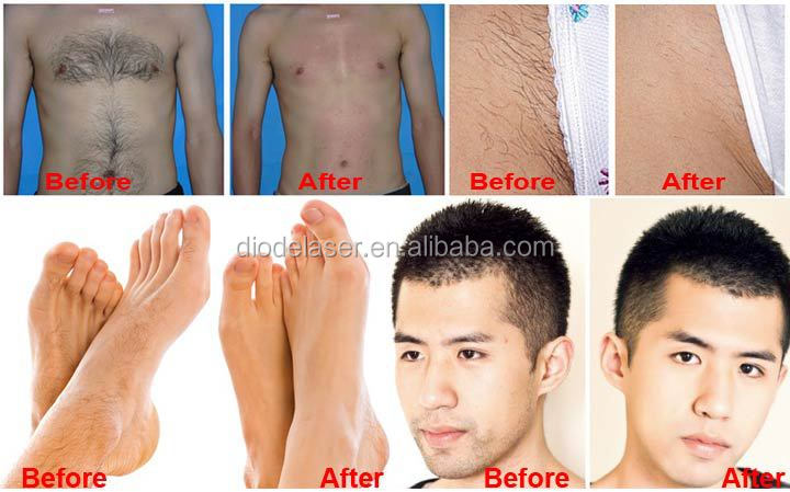 Toe Hair Removal Dark Color Hair Removal