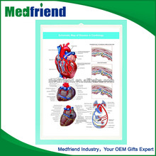3D Medical Chart - Cardiological Disease