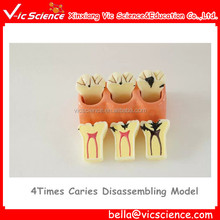 4Times Caries Disassembling Model