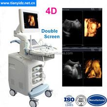 Double Screen 4D Imaging Obstetric Ultrasound Diagnostic System