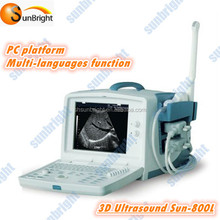 Cheapest real time 3D ultrasounds machine for price