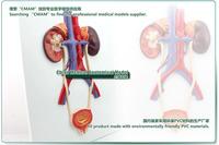 Товары для изучения медицины cmam] ,  CMAM-Urinary