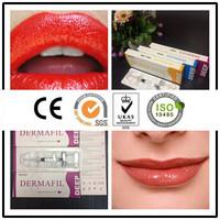 hyaluronic acid lip filler/lip augmentation/lip enhancement