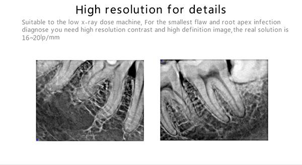 10 Digital dental x ray sensor YSDEN-500.jpg