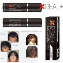 Popular hair products hot trending natural hair growth serum herbs hair back solution