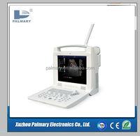 Color Doppler USG/ Color Ultrasound machine/color ultrasound scanner