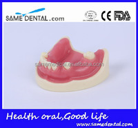 Hot Sale Dental Implant Practice Model With Gingival School Teaching Demonstration Models