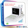 DW360 ultrasound portable & medical equipment price