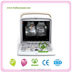 MAQ5 portable color doppler 4d ultrasound machine with CE