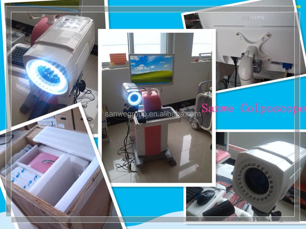 colposcope machine