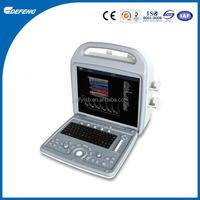 DUS-Q580 Portable 3D Color Doppler Ultrasound Scanner