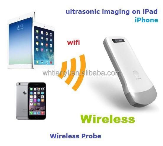 Our group supply digital ultrasonic wwwultrasoundscannernet/portfolio-item/portable-b-scanner-uprobe-2