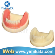 Yimikata Dental Promotion Find agents Teaching Model CE Approved high quaility Implant practice model