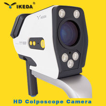 digital colposcope with clear image/colposcope software/plastic vagina images picture