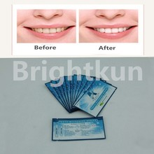 2015 Hot Sale Tooth Whitening Strips better than crest whitestrips 3d