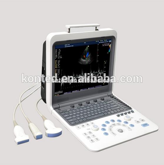 لون دوبلر القلب 4d آلة رسم قلب الصدى، جهاز الموجات فوق الصوتية المحمولة لون دوبلر