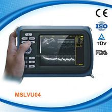 Handheld veterinary B ultrasound scanner used in bovine, sheep, etc (MSLVU04M))