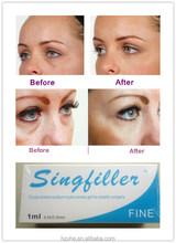2015 hot sell 100% pure Hyaluronic Acid facial dermal filler for remove Periorbital Lines