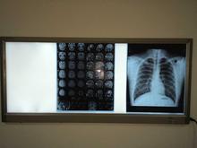 Médica x-ray film azul sensíveis filme azul quente Kodak cr