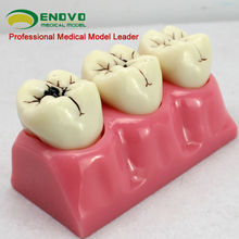 Oral Cavity Teeth Caries Decomposition Model / Caries Study Model in 6 parts