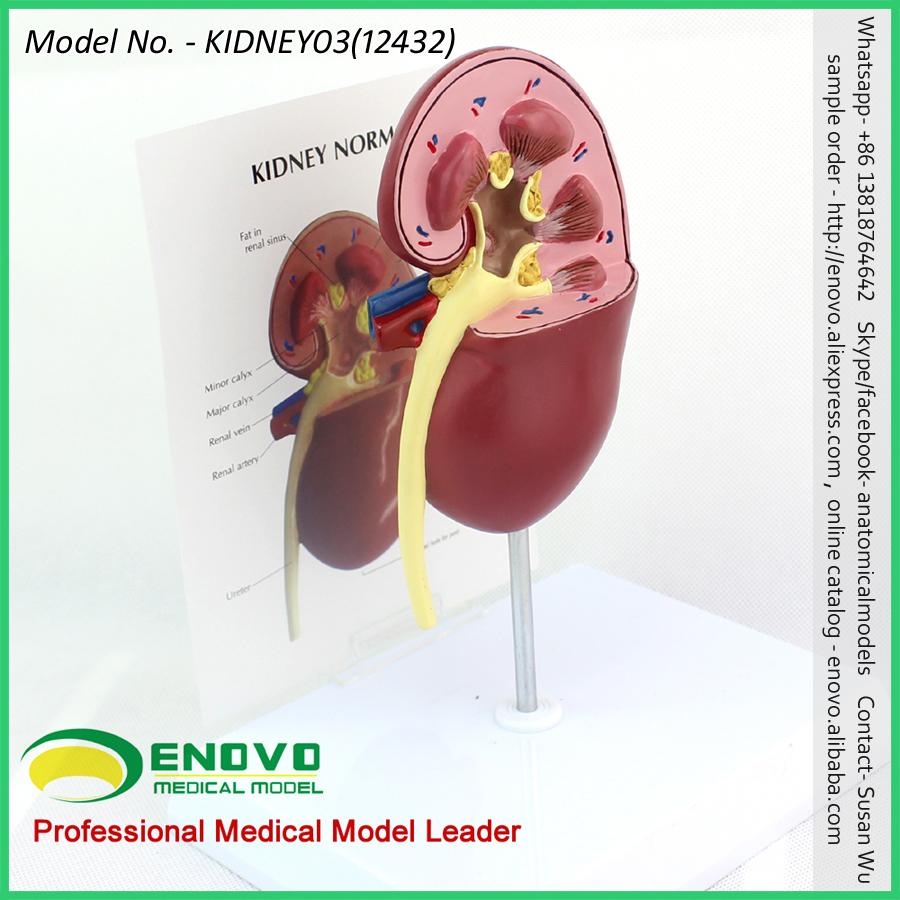Venta 12432 oversize enfermo riñón anatomía, 1 parte, corte, modelos ...