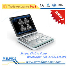Promotion portable Ultrasonic Diagnostic Devices Type B Ultrasound MSLPU25F