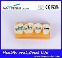 Wholesale School Supplies Dental Model, Pit and Fissure Model