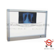 Cheap Double linkage x-ray film Viewer with CE&ISO certification