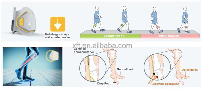 yeni nesil fes ayak damla stimülatörü zamanlı hasta