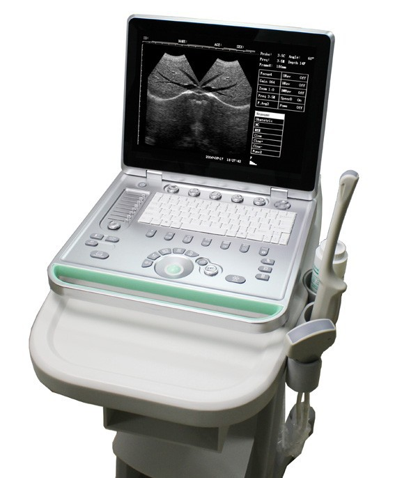 Ultrasonic Portable Doppler Medical Ultrasound Machine For