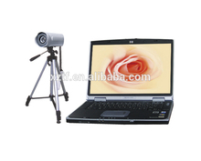 Tf-6001 ноутбука видео портативный цифровой кольпоскоп с влагалище фото камеры