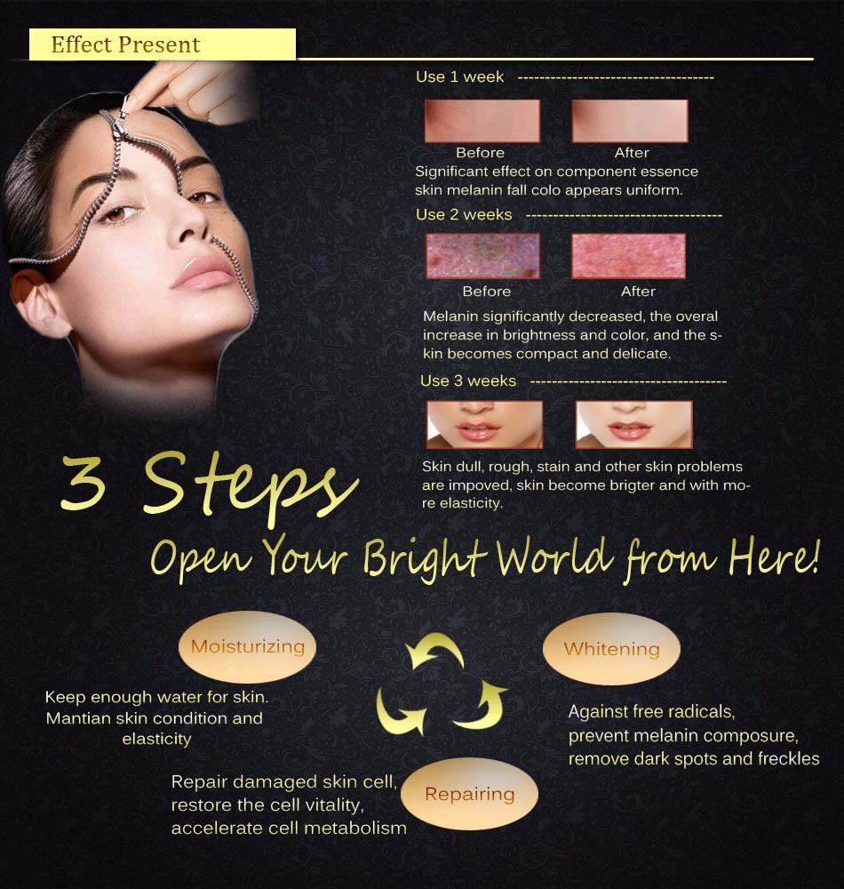 La cosmétologie lintroduction des fils sur la personne