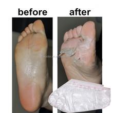 7days callus peeling silky perfect foot peeling