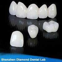 Dental zirconia ceramic false teeth