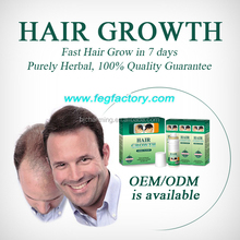 Hair restoration for men with 60ml*3 bottle hair care product , hair loss treatment