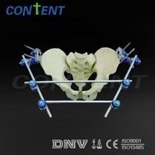 fijador externo ortopédicos instrumento de la pelvis fijador externo