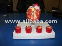 heart model with Arteriosclerosis model of artery Blockage