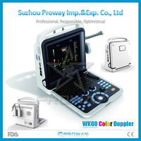 3D 4D Color Doppler Ultrasound Scanner Portable Ultrasound Machine with Cheap Price