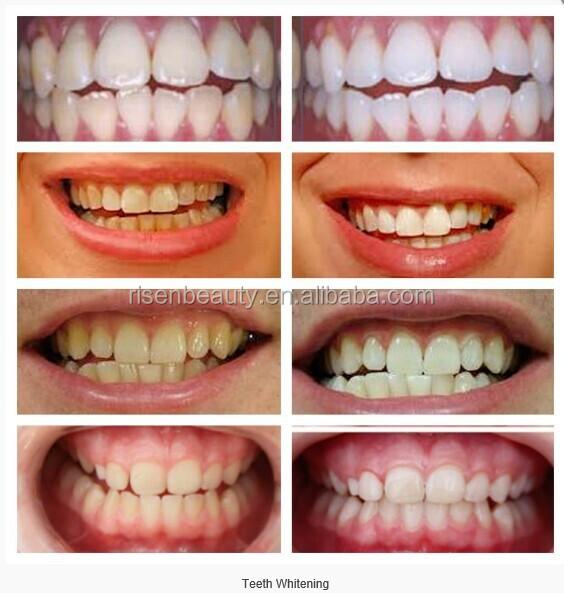 Как сделать зубы белыми в домашних условиях: пути достижения 7