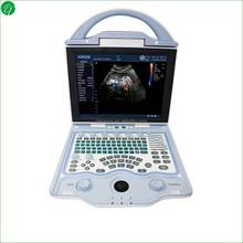 Full Digital Color Doppler Ultrasound scanner for human