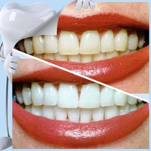 Exclusive As Seen On Tv Product 2015 Oral Dental Care Teeth Cleaning Equipment