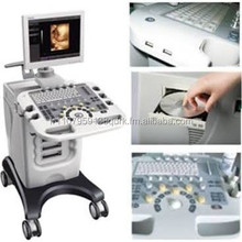 SW-1200 B mode ultrasound diagnostic instrument (trolley)